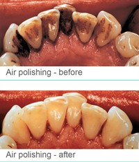 Air Polishing