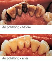 Air Polishing