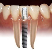 Benefits of dental impalants