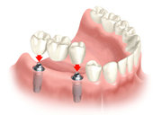 Replacement of Several Teeth