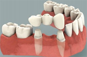 Fixed Dental Bridges