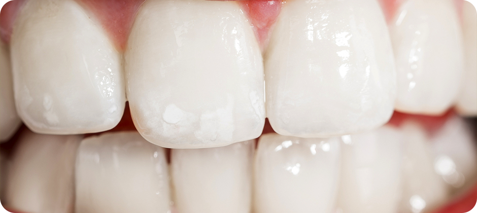 Causes, Effects and Treatment for Loss of Tooth Enamel