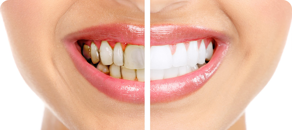 Serving Gum Problems with Required Dental Treatment | Surya