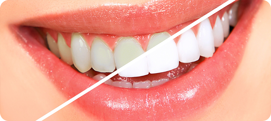 How to Maintain Sparkling White Teeth All Your Life