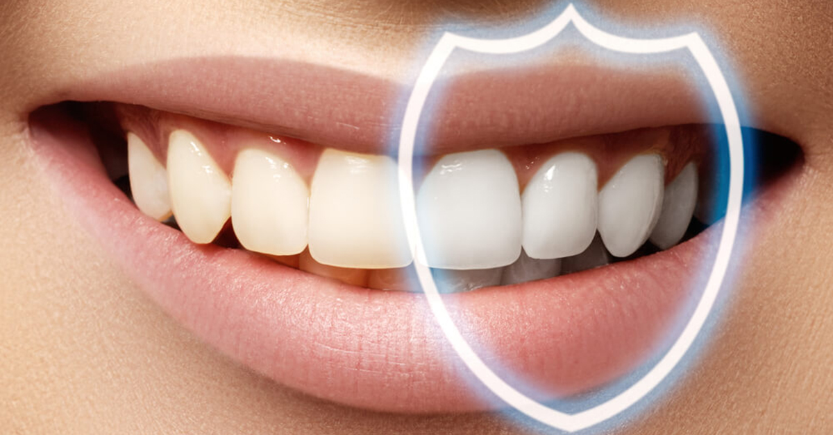 Bonded Teeth