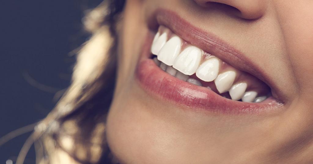 dark gums