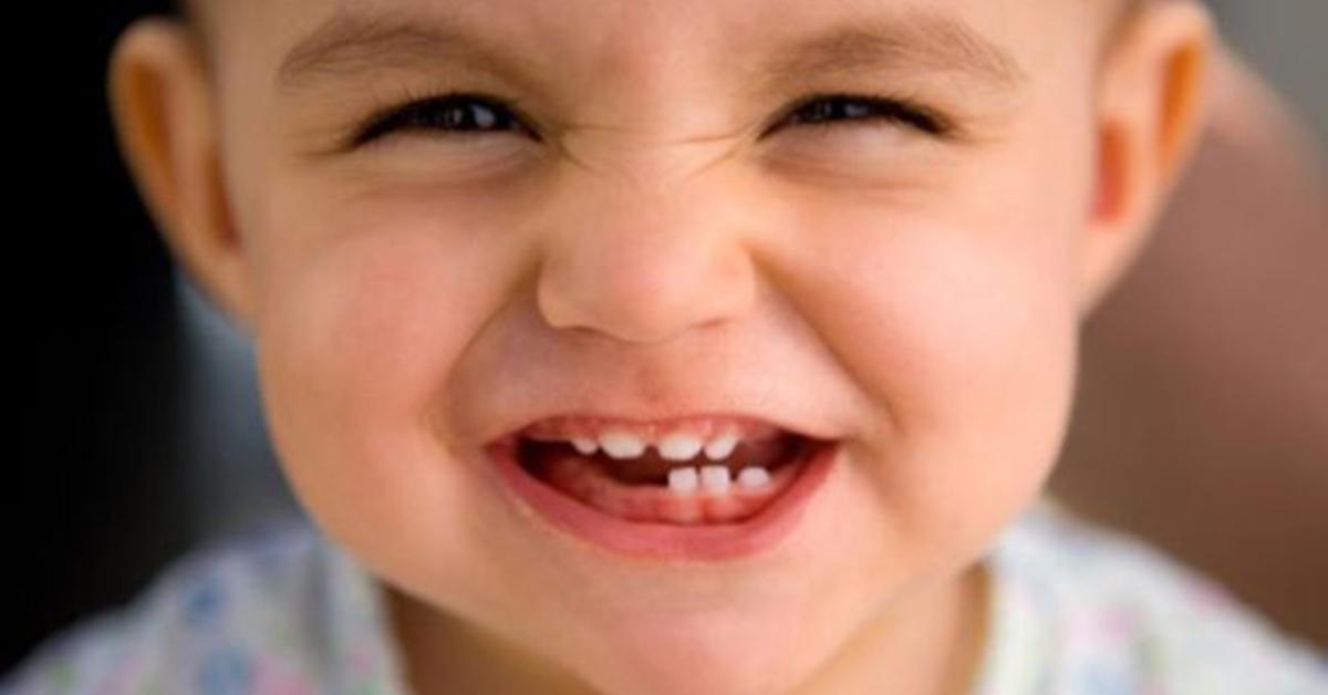 Kid with milk Teeth