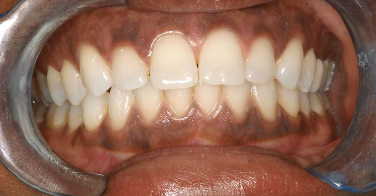 Black Colored Gums