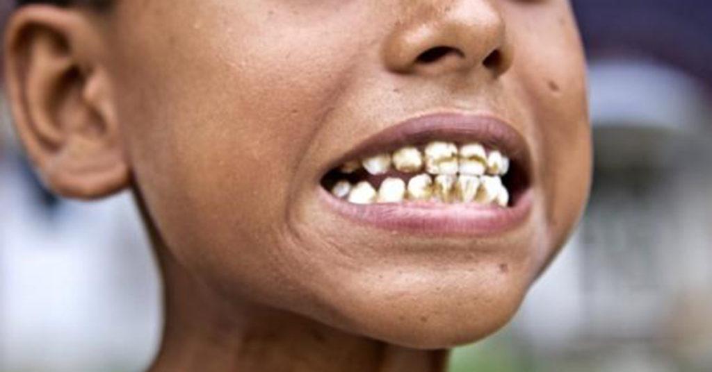 Teeth affected by dental fluorosis