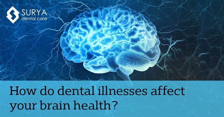 How do dental illnesses affect your brain health