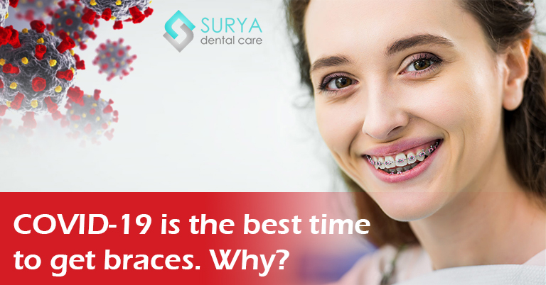 COVID-19 is the best time to get dental braces