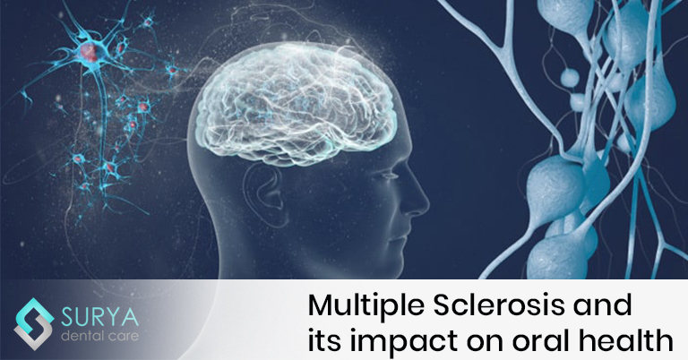 Multiple Sclerosis and its impact on oral health