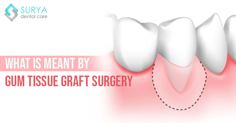 What is meant by Gum Tissue Graft Surgery