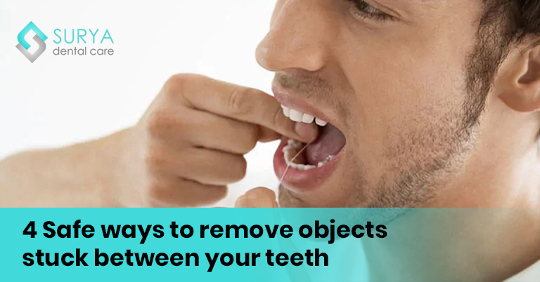 4 Safe ways to remove objects stuck between your teeth