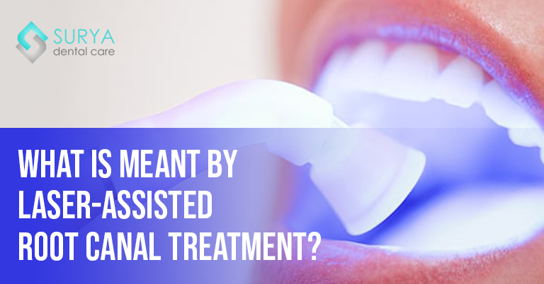 What is meant by Laser-Assisted Root Canal Treatment