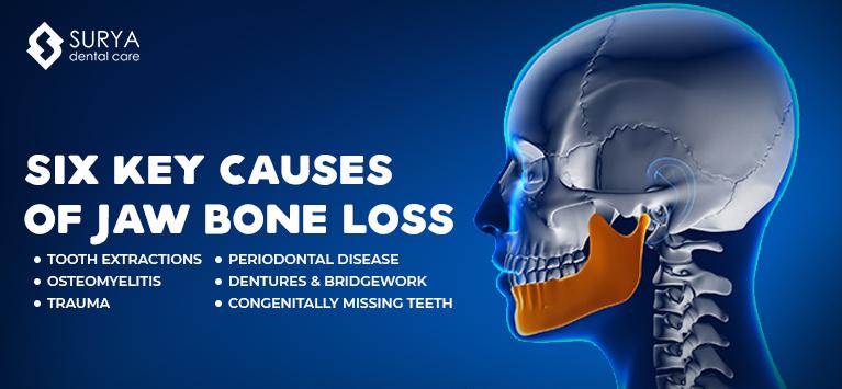 Six Key Causes of Jaw Bone Loss