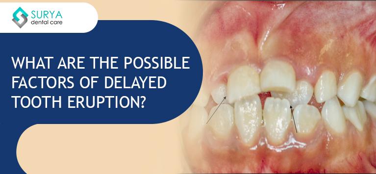 Delayed Dental Eruption