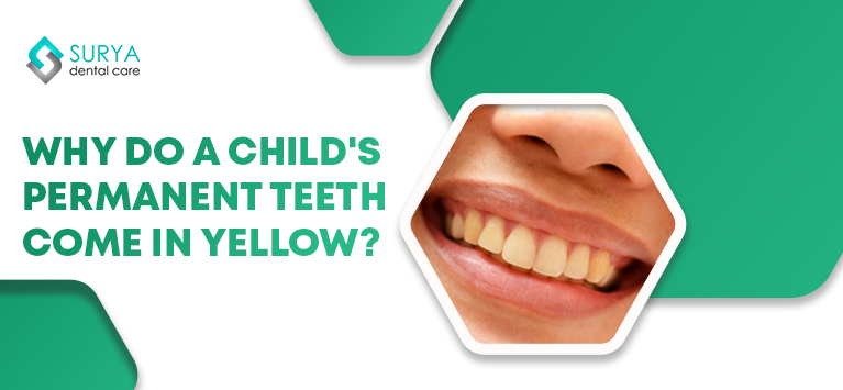 Why do a child's permanent teeth come in yellow?